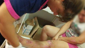 Emergencia hídrica: recomendaciones para prevenir infecciones de la piel