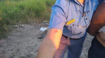 Mordió en un brazo a una policía para no ser detenida